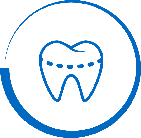 Tooth crown dental service