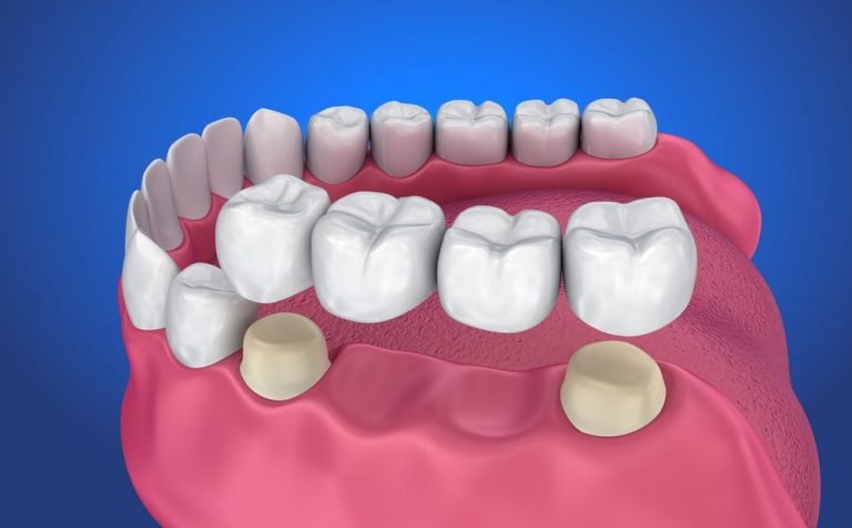 Cosmetic Dentist near me Houston