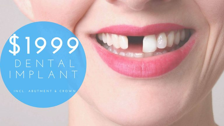 Dental implant Special 1999 Dental Special